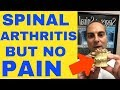 Spinal Arthritis But No Arthritis Pain Arthritis Causes by Chiropractor In Vaughan Dr Walter Salubro