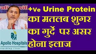 Significance of Positive Urine Protein Treatment Prevention one plus 2 two three