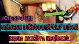 Gigi Bungsu Bermasalah dan Kompilasi Berbagi Macam Geraham Bungsu.