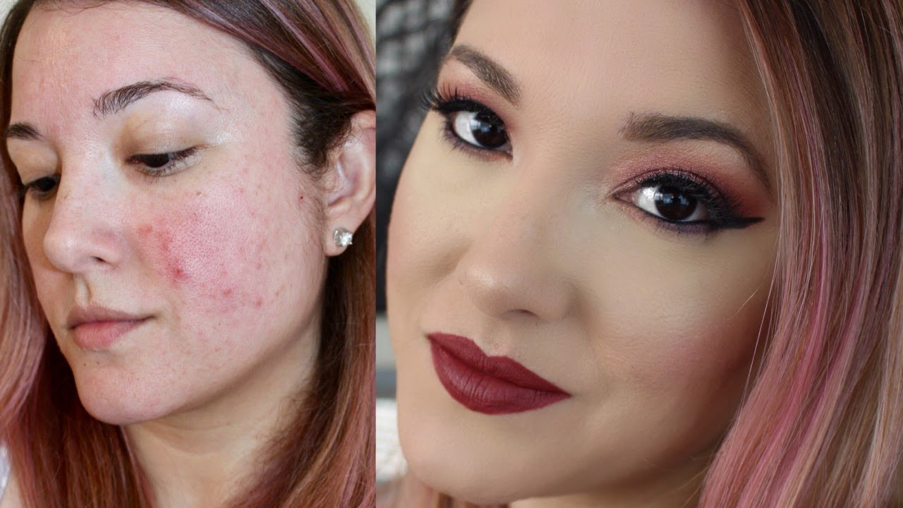 How to cover acne with makeup