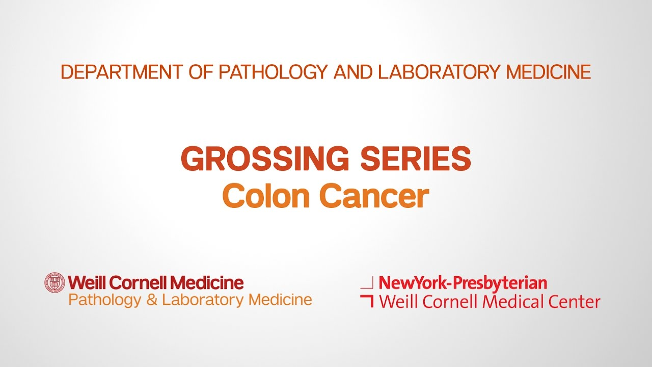 Grossing Colon Pathology Specimens Department Of Pathology And Laboratory Medicine Youtube
