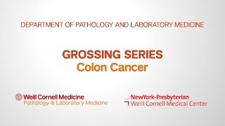Grossing Colon Pathology Specimens | Department of Pathology and Laboratory Medicine