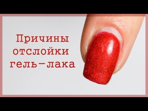 Кожа пальцев рук вокруг ногтей