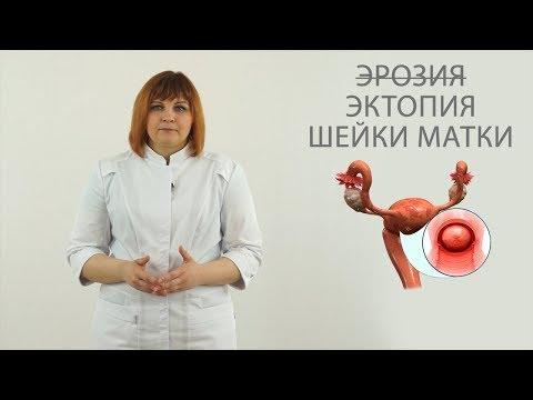 эрозия  ( эктопия )  шейки матки