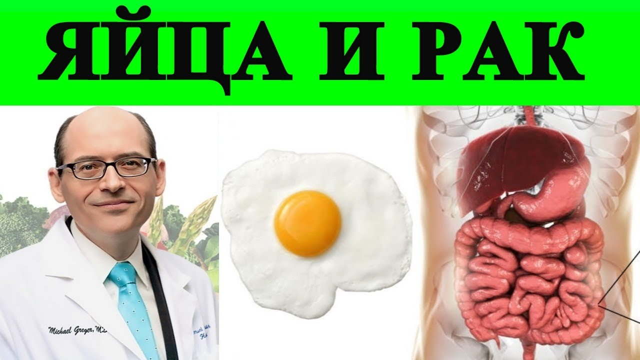 ????Яйца и Рак???? (Онкология) - Доктор Майкл Грегер