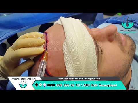 DHI Hair Transplant Stages Turkey 01 - Choi Implanter Pen Technique- DHI Hair Transplant Videos
