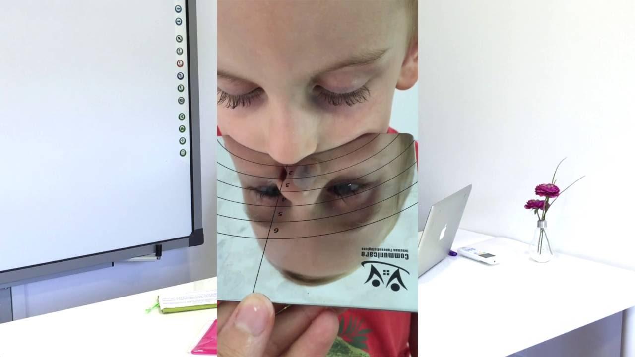 Espejo de glatzel valorar la obstrucci n respiratoria y - Espejos para rebotar el mal ...