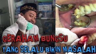 Pencabutan Sisa Gigi Geraham Bungsu | Wisdom teeth.