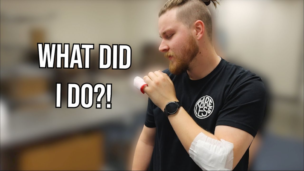 It Happened... How I crashed | Removing my bandage!