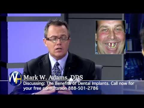 Dental Implants with Mark Adams, DDS. Clear Choice Dental Implants Centers