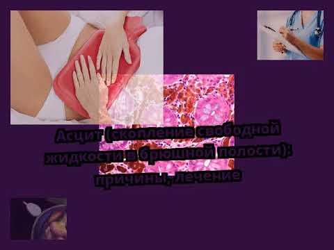 Асцит (скопление свободной жидкости в брюшной полости): причины, лечение