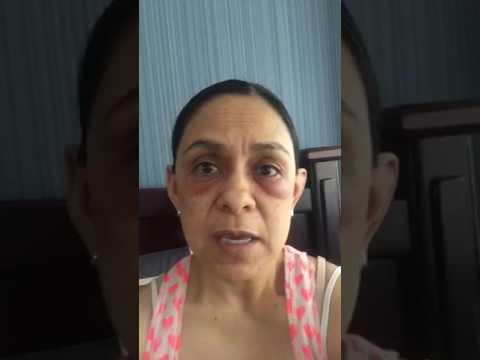 Efectos Secundarios Crema La Milagrosa Youtube