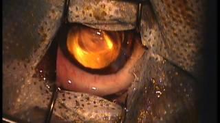 Удаление катаракты у собаки. Результат через 1.5 года