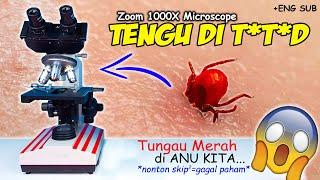 INILAH TUNGAU MERAH YG SUKA GIGIT tytyd KITA | Red Mites Microscope Zoom 1000X