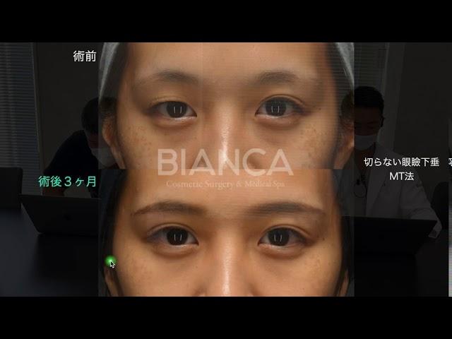 【よくわかる注入症例解説】切らない眼瞼下垂MT法