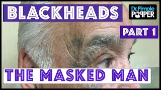 Return of The Masked Man: Blackhead Extractions!   Session 3, Part 1