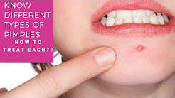 hqdefault - Acne Papules Treatment There Is A Cure