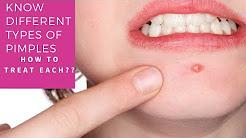 hqdefault - Best Treatment For Acne Pustules