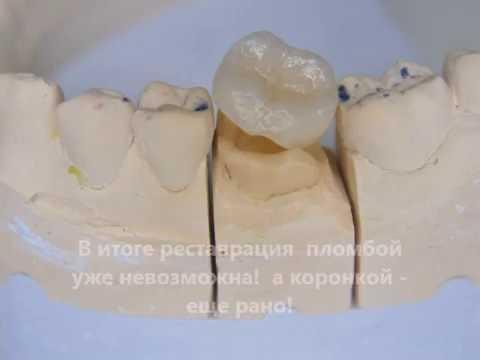 Керамическая вкладка против пломбы
