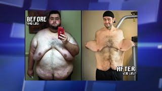 Losing over 300 Pounds Has Left Man with Significant Excess Skin