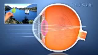 Presbiopia ou vista cansada surge a partir dos 40 anos e acontece naturalmente devido o envelhecimen.