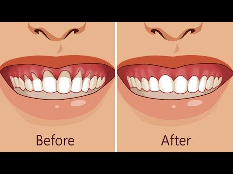 Natural Ways to Stop and Heal Receding Gums Before It's Too Late