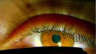 Pupillary Reflex (Reflex Rupilar)