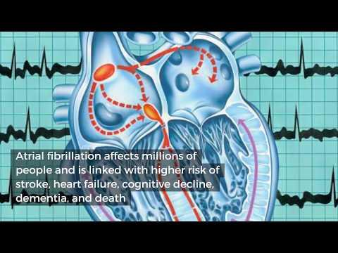 Eating chocolate may decrease risk of irregular heartbeat