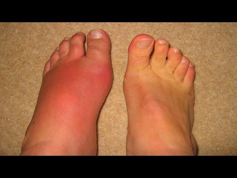 diet for gouty arthritis natural helps for gout how to remove uric acid crystals from toe