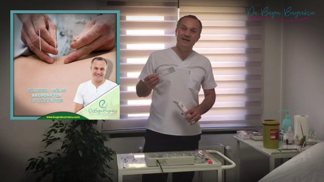 Akupunktur İle Zayıflama - Evde Akupunktur Nasıl Yapılır