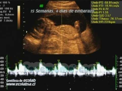 15 semanas 4 d as de embarazo youtube - 15 semanas de embarazo cuantos meses son ...