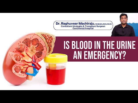 Is Blood In The Urine An Emergency? - Dr. Raghuveer Machiraju - Continental Hospitals