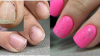 Отодрала все ногти Ногти тряпочки Наращивание без форм за час Зимний дизайн ногтей Маникюр