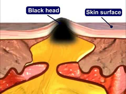 Acne causes and treatment youtube ccuart Gallery