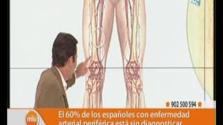 Claudicación periférica enfermedad vascular intermitente y