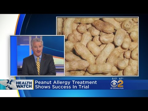 Peanut Allergy Treatment Shows Success In Trial