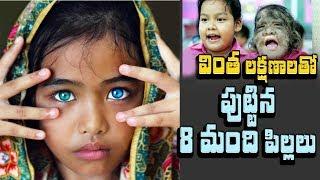 వింత శరీర లక్షణాలతో పుట్టిన 8 మంది పిల్లలు | 8 Children Born With Incredible Features