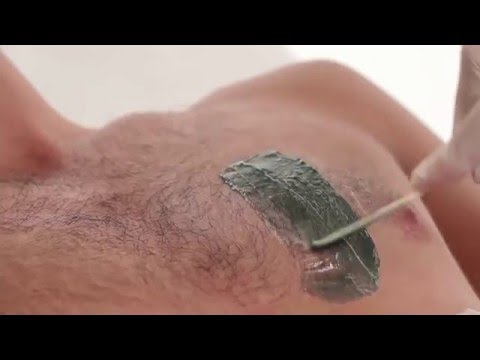 Мужская эпиляция - удаление волос у мужчин