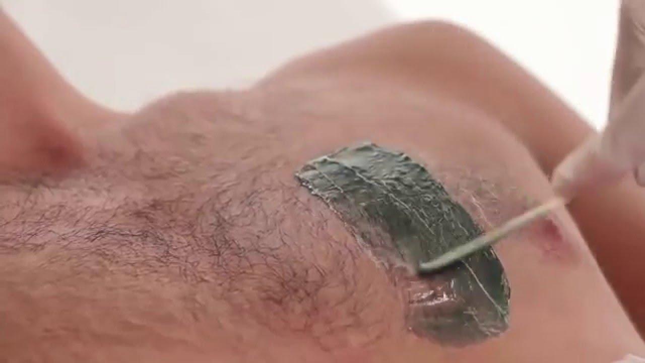 Удаление волос навсегда у мужчин