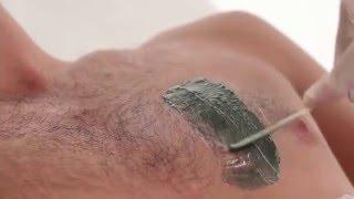 Мужская эпиляция - удаление волос у мужчин(, 2015-12-08T21:22:40.000Z)