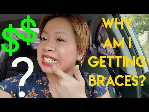 GETTING BRACES | HOW MUCH DOES IT COST | DOES INSURANCE ...
