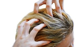 Red Itchy Scalp Causes