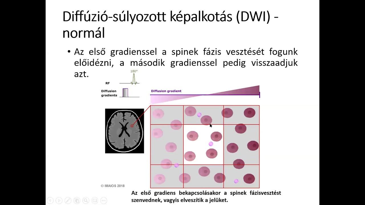 Az MRI parazitákat mutat e)