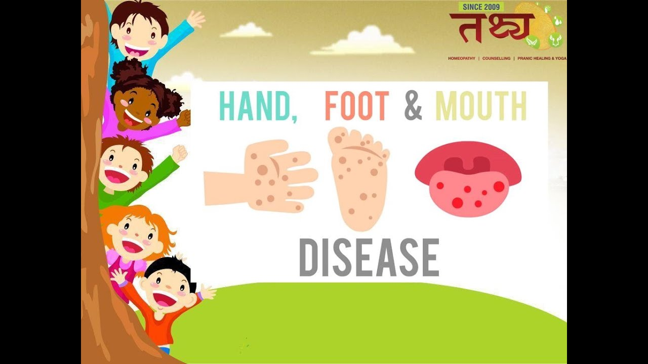 HFM - Hand Foot Mouth disease | Common in children ...