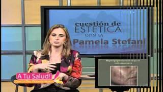 Cuestión de estética - La Hiperpigmentación (Parte 1)
