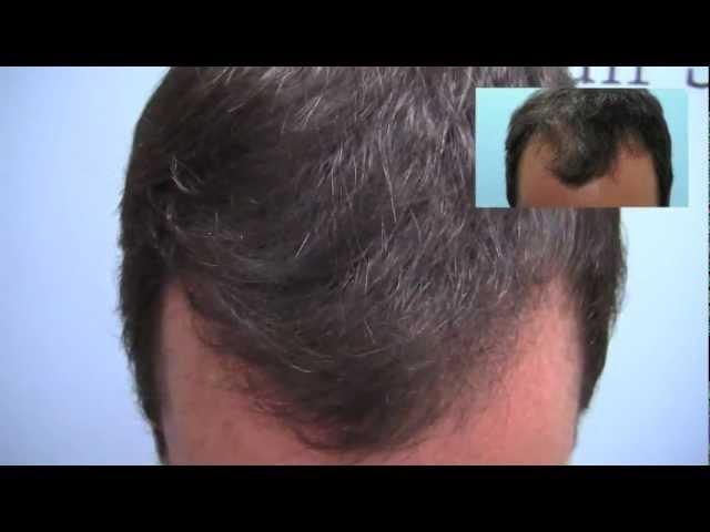 FUE NeoGraft Hair Transplant - 1200 grafts - Dr. Micahel Vories, Charlotte, NC