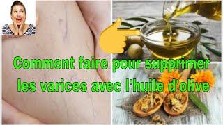 Comment faire pour supprimer les varices avec l'huile d'olive