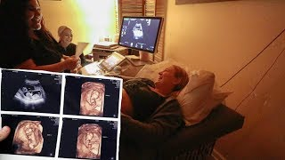 Download Seeing The Twins in 3D Ultrasound at 12 Weeks!!! Mp3 and Videos