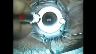 Lasik Surgery by Dr. Sanjay Dhawan, New Delhi (sdhawan.com)