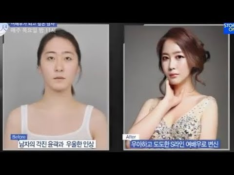 [View Plastic Surgery Korea Review] Let me in TV Show, FFS i
